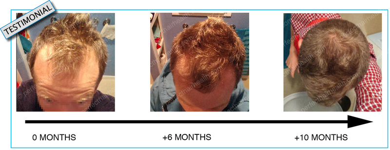 masturbation testosterone hair loss