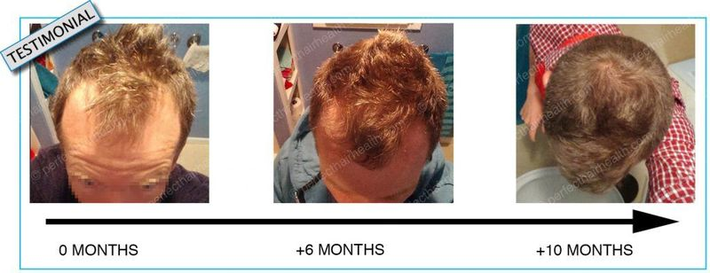 Increasing Igf 1 For Hair Loss Think Twice Perfect Hair